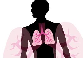 RSM lung tranplantation